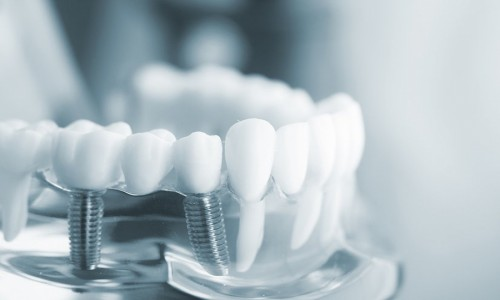 Top Oral Care Tips for IMPLANTS